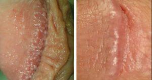 Glândulas de tyson tratamento 2