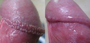 Glandulas de tyson tratamento