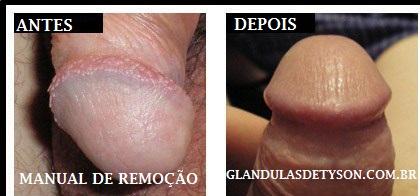 glandulas-de-tyson-antes-e-depois